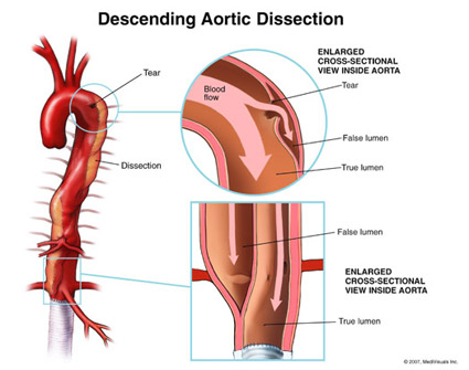 CORE EM: Aortic Dissection