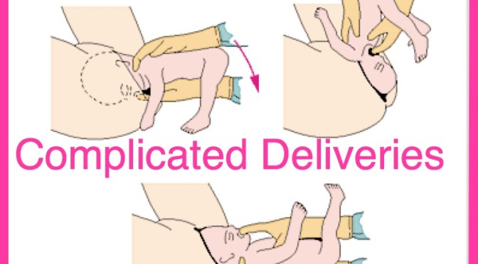 The Complicated Delivery: What do you do?