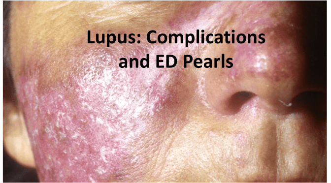 Systemic Lupus Erythematosus: Common Complications and Emergency Medicine Pearls