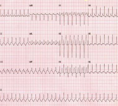 Tachycardic Arrhythmias in Pregnancy: Management