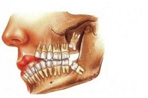 300px-Dente-del-giudizio