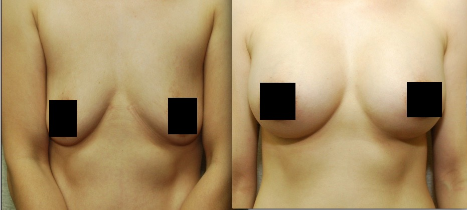 Enhancements Cosmetic Surgery - Breast Augmentation - covered