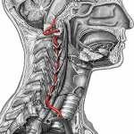 Dissecção da Artéria Vertebral Pode Parecer Enxaqueca