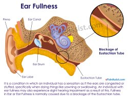 Small Of Ear Infection Hydrogen Peroxide