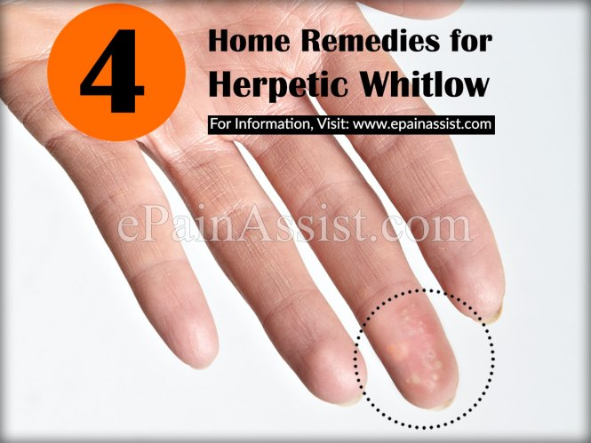 Should You Use Lotion On Herpes Whitlow 1