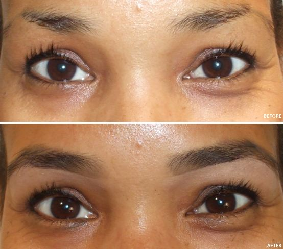 Rogaine For Eyebrows How To Use Reviews Results Side