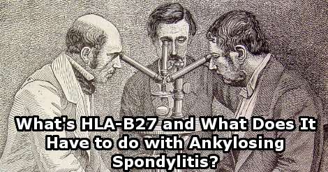What's HLA-B27 and what does it have to with Ankylosing Spondylitis?