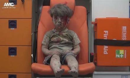 Vídeo de criança ferida na Síria após bombardeio comove o mundo