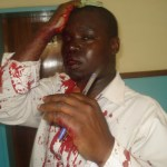 Evidence of police brutality, this is Isaac Kambwiri of capital radio