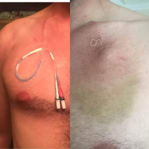 LEFT: Hickman line, RIGHT: Portacath just after insertion.