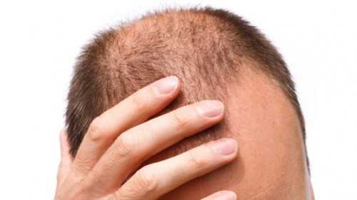 Get Rid of Baldness with Hair Vitamins Supplements