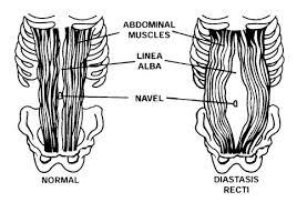 Que es y como recuperar la diastasis