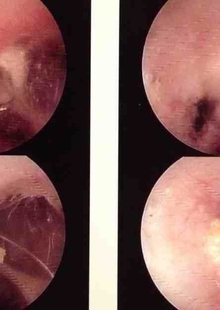 Ragdoll Cat Ear Canal Benign Cyst