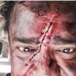 Compadre Washington posta foto com rosto ferido