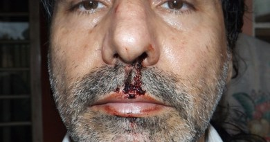 Jornalista registra BO contra deputado de MT por agressão durante evento
