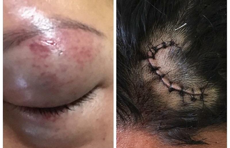 Vítimas de lesão corporal leve atendidas pela Deam de Santarém, em agosto de 2018 (Foto: Polícia Civil/Divulgação)