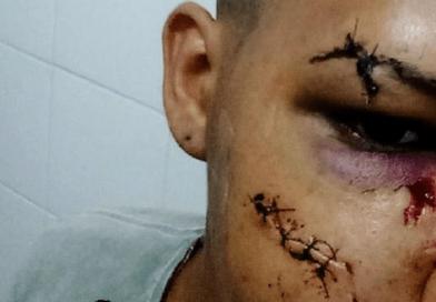"""""""Eu sou gay e isso não vai mudar em nada"""", diz vítima de agressão"""
