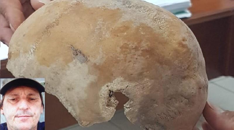 signel cranio