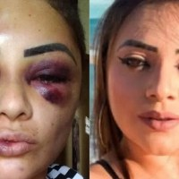 Blogueira é espancada, tem cabelo cortado  e olhos quase arrancados por mulheres