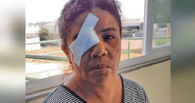 mulher esfaquiada no olho