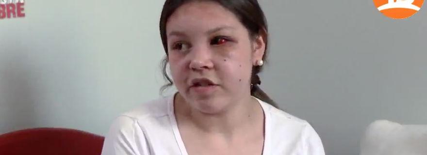 """Joven fue brutalmente golpeada por su ex pareja tras participar en """"Nadie Está Libre"""""""