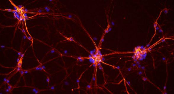 Così il cervello collega i ricordi tra loro