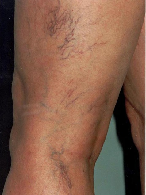 What Are Varicose and Spider Veins?
