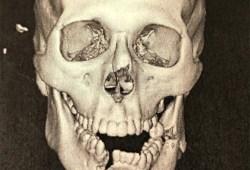 【RIZIN19】佐々木憂流迦が公開した顎粉砕写真に衝撃の声「朝倉海のパンチ力エグいw」「殺人パンチ」