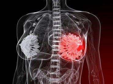 Smart Bra May Replace Mammograms