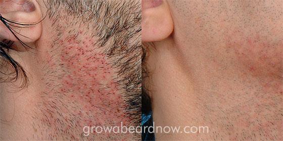 Image of a beard transplant healing.
