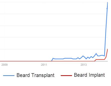 A photo of beard transplant popularity.