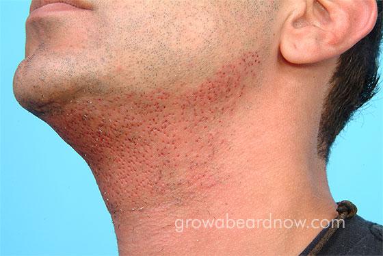 Photo of a man having undergone a beard transplant.