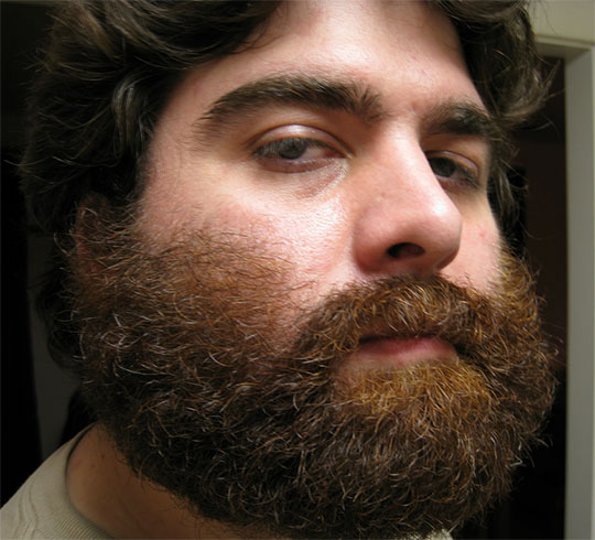 This is an extreme example of the crawling-up-your-face cheek style. The beard is left to do its thing. This is what I grow, though I do trim the top of the cheek a bit to form a straight line from earlobe to nose.