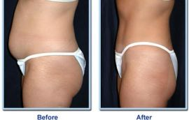 Cryolipolysis Before After