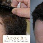 texas-fue-hair-transplant-2000-grafts-1