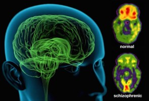 webmd_rm_photo_of_schizophrenic_brain
