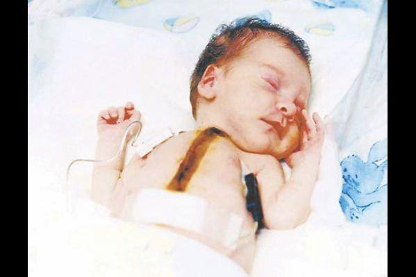 Tο 1984 στην ενός έτους Baby Fae, με βαριά καρδιοπάθεια, έγινε για πρώτη φορά μεταμόσχευση καρδιάς από μπαμπουίνο (είδος αρχέγονου πιθήκου), στην Καλιφόρνια των ΗΠΑ. Το παιδί έζησε μόνο 21 μέρες, λόγω απόρριψης του μοσχεύματος. Όταν ρωτήθηκε ο χειρουργός γιατί δεν χρησιμοποίησε καρδιά από άλλο είδος πιθήκου με μεγαλύτερη συγγένεια προς τον άνθρωπο, απάντησε πως δεν πιστεύει στη θεωρία της εξέλιξης του Δαρβίνου…
