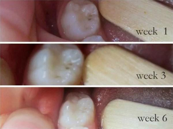 Cara Menyembuhkan Gigi Anda alami tanpa Mengunjungi Dokter Gigi Anda