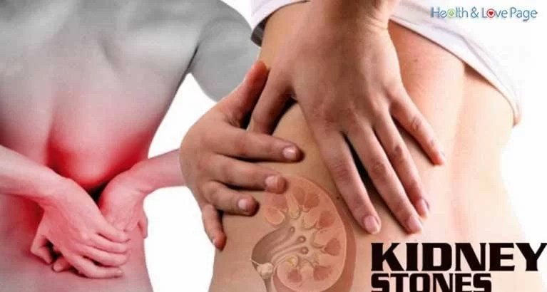 Healthy Juices to Effectively Melt Kidney Stones