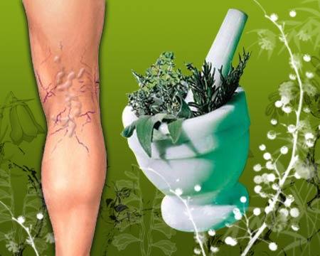 Naturopathy for Varicose Veins