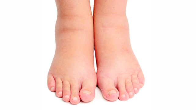 Swollen Ankle and Leg Causes  Treatments  and More