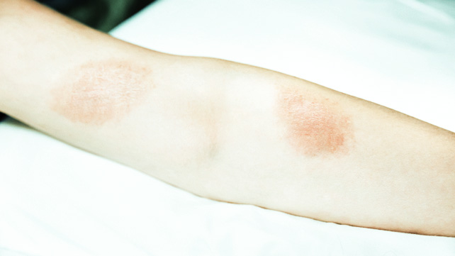 Poison Ivy Rash  Pictures  Remedies  Prevention   More