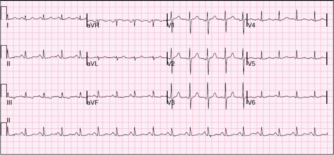 EKG nec pancreatitis
