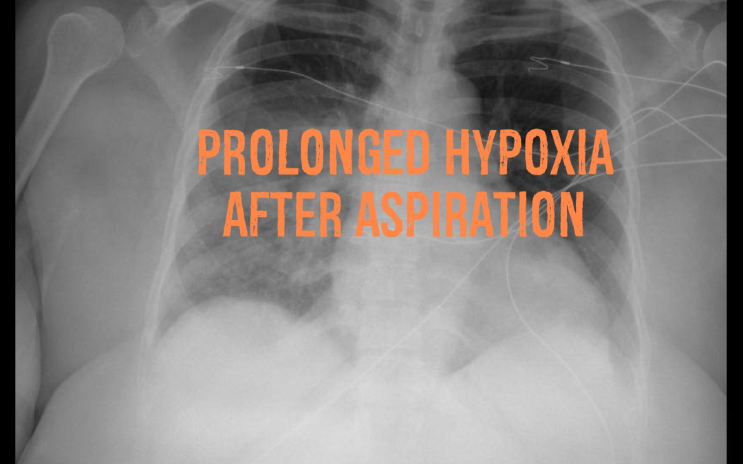 Prolonged Hypoxia After Aspiration