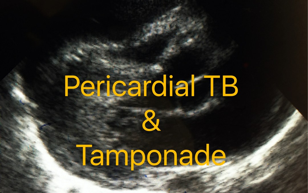 Pericardial TB with tamponade