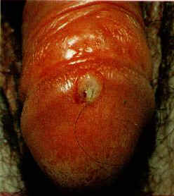 Pictures of Male Syphilis Symptoms