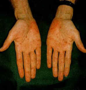 Rash caused by Syphilis on Hands
