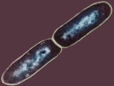 Dividing bacterial cell of Chancroid