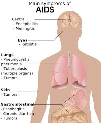 Symptoms of Acquired Immune Deficiency Syndrome (AIDS)