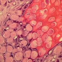 Molluscum Pictures